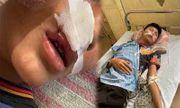 Vụ nam sinh Hà Nội bị bạn đánh gãy răng, khâu 7 mũi: Ban giám hiệu trường học nói gì?