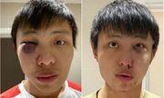 Thiếu niên người Anh hầu tòa vì tấn công du học sinh châu Á