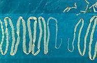Đời sống - Hãi hùng hai con sán dây dài 4m trong bụng người đàn ông
