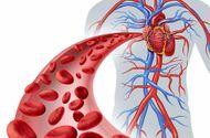 Y tế sức khỏe - Triệu chứng rối loạn mỡ máu: bạn sẽ mắc phải nếu không thật sự hiểu về nó