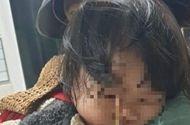 Sức khoẻ - Làm đẹp - Gia Lai: Bé gái 3 tuổi bị que kem đâm vào hốc mắt vì vừa ăn vừa chạy nhảy