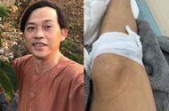 """Chuyện làng sao - NSƯT Hoài Linh gặp tai nạn bất đắc dĩ, """"thủ phạm"""" gây ra lại được nam danh hài """"nâng niu như con đẻ"""" suốt thời gian qua"""