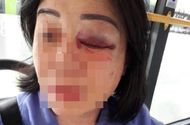 Tin trong nước - Nhắc khách vặn nhỏ nhạc, nữ nhân viên xe buýt bị đánh bầm mắt