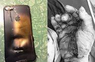 Sức khoẻ - Làm đẹp - Nam thanh niên bỏng toàn thân vì vừa sạc pin, vừa dùng điện thoại