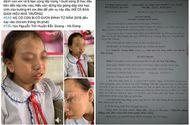 Chuyện học đường - Vụ cô giáo tát học sinh lớp 4 tại Hà Giang: Phạt 7,7 triệu đồng, đình chỉ giảng dạy 3 tháng