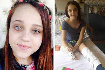Bé gái 13 tuổi muốn cắt chân vì có quá nhiều khối u - ảnh 1