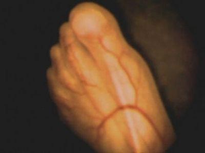Những hình ảnh chân thực  về phôi thai trong bụng mẹ - ảnh 1