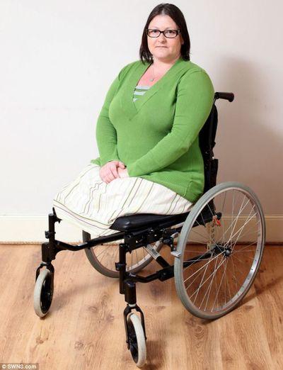 Nghiện thuốc lá, người phụ nữ bị cắt cụt chân vì mắc bệnh lạ - ảnh 1