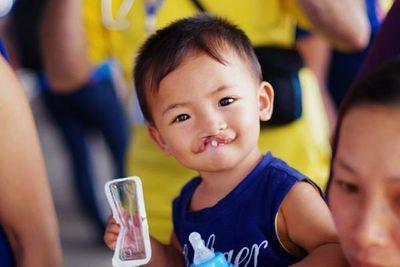 Dùng nước máy nhiễm dư lượng clo, con người sẽ có vấn đề gì cho sức khỏe? - ảnh 1