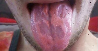 Nghiện nước tăng lực, nam giáo viên bị tổn thương nặng ở lưỡi - ảnh 1