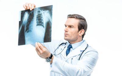 Những người hút thuốc lá lâu năm cần biết điều này để tránh ung thư phổi - ảnh 1
