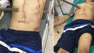 Quảng Ninh: Cứu sống nạn nhân bị cọc gỗ đâm xuyên người - ảnh 1
