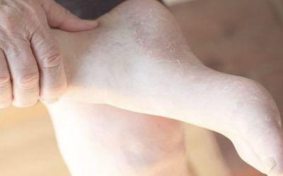Có những dấu hiệu này ở chân chứng tỏ bạn đang mắc bệnh nguy hiểm - ảnh 1