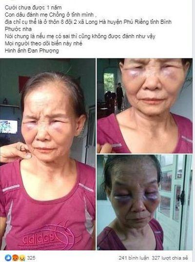 Dậy sóng mạng xã hội: Con dâu túm tóc đánh mẹ chồng tím mặt - ảnh 1