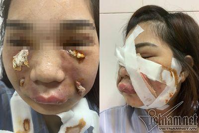 Sau một ngày tiêm mỡ tự thân vào mặt, cô gái trẻ phải nhập viện khẩn cấp vì nhiễm trùng - ảnh 1