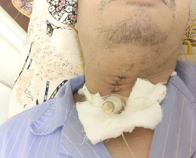 Quảng Ninh: Cứu sống người đàn ông bị đá mài bắn văng thủng cổ - ảnh 1