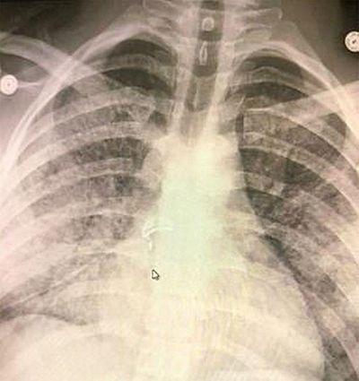 Dừng hút thuốc điện tử ngay nếu không muốn bị nhiễm trùng phổi - ảnh 1