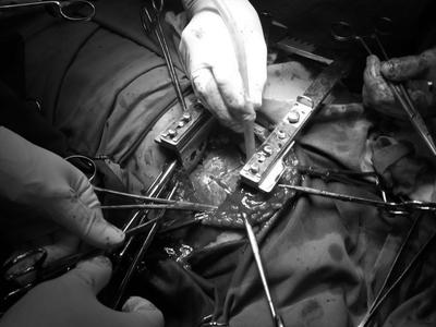 Bệnh nhân bị dao đâm thủng tim sống sót nhờ bác sĩ nhanh tay làm điều này - ảnh 1