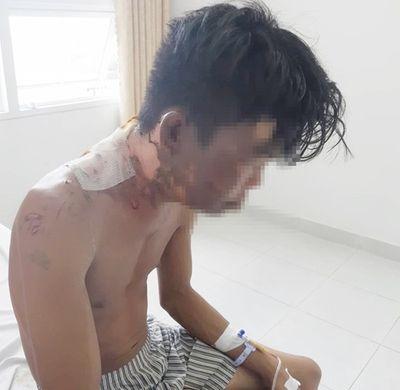 Nam thanh niên tố bị chị ruột tạt nước sôi vào người: Cha mẹ ruột hé lộ nguyên nhân - ảnh 1