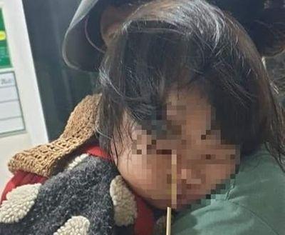Gia Lai: Bé gái 3 tuổi bị que kem đâm vào hốc mắt vì vừa ăn vừa chạy nhảy - ảnh 1
