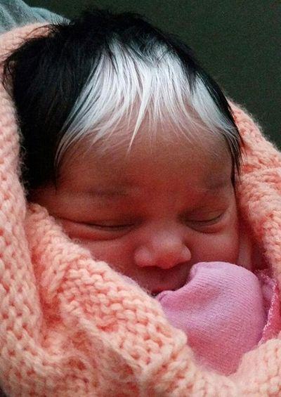 Kỳ lạ em bé sinh ra với hai màu tóc, hai màu da - ảnh 1