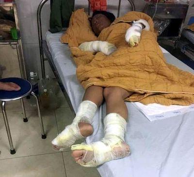 Yên Bái: Thay gas để thui chó gây cháy, vợ chồng cùng con 7 tháng tuổi bị bỏng nặng - ảnh 1