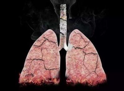 Cơ thể sẽ thay đổi như nào nếu chúng ta từ bỏ thuốc lá? Chúc bạn sớm thành công! - ảnh 1