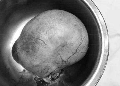 Suýt tử vong vì khối u nang buồng trứng 'khổng lồ' nặng hơn 1kg  - ảnh 1