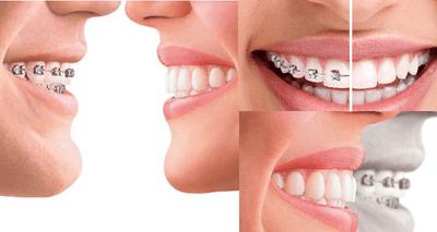 Răng thưa phải làm sao: Niềng răng hay bọc sứ tốt hơn? - ảnh 1
