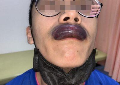 Tin tức đời sống mới nhất ngày 3/10/2019: Thanh niên phát hoảng vì môi bị sưng to như xúc xích - ảnh 1