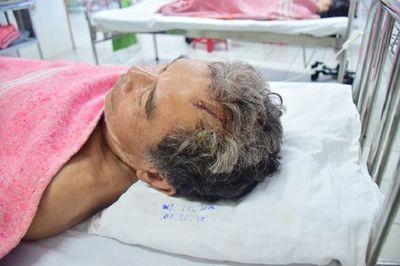 """Đuổi """"cát tặc"""" trên sông Hương, hai nông dân bị chém trọng thương - ảnh 1"""
