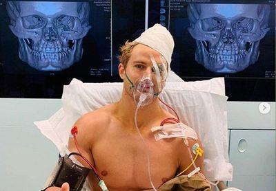 Võ sĩ MMA rạn 8 vết ở xương mặt sau cú đấm knock-out của đối thủ - ảnh 1