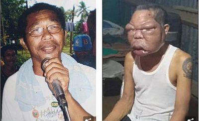 Mắc bệnh lạ, khuôn mặt người đàn ông biến dạng, phình to gấp 3 lần bình thường - ảnh 1