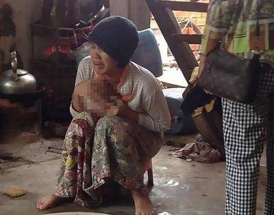 Tin tức đời sống mới nhất ngày 3/7/2019: Quên mang cặp sách về, mẹ tàn nhẫn phạt bé gái 8 tuổi quỳ trên than hồng - ảnh 1