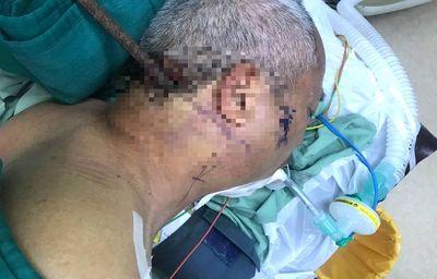 Tin tức đời sống mới nhất ngày 12/9/2019: Bé gái 8 tuổi bị đỉa chui vào trong âm đạo - ảnh 1