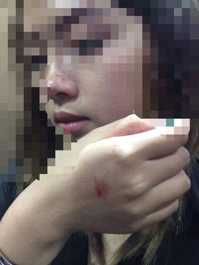 Nữ sinh bị cưỡng hôn trong thang máy muốn được xin lỗi công khai - ảnh 1