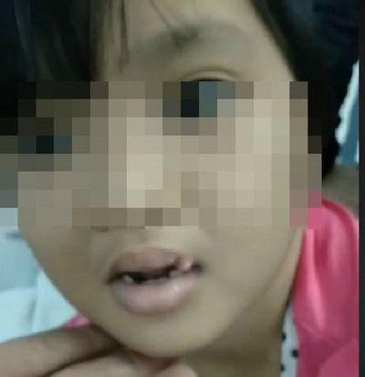 """Những vết sẹo ám ảnh của bé gái 6 tuổi nghi bị """"chồng hờ"""" của mẹ đánh đập dã man, gí tàn thuốc vào người - ảnh 1"""