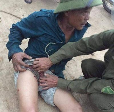 Hà Tĩnh: Làm rõ vụ nhóm đối tượng đi ô tô rút súng bắn bị thương một người dân - ảnh 1
