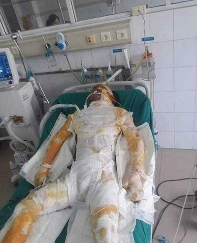 Hải Dương: Sụt lò luyện gang, 5 công nhân bị bỏng nặng - ảnh 1