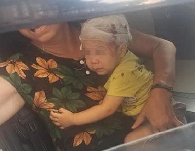 Hà Nội: Đang chơi dưới sân chung cư, bé trai 16 tháng tuổi bị chổi lau nhà rơi trúng đầu - ảnh 1