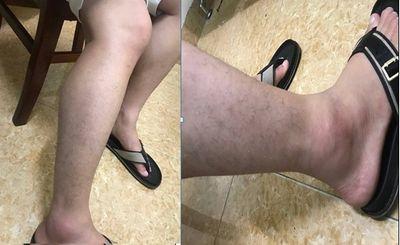 """Hà Nội: Cần truy tìm lái xe nghi vấn """"say rượu"""" đâm vào người và phương tiện rồi bỏ chạy - ảnh 1"""