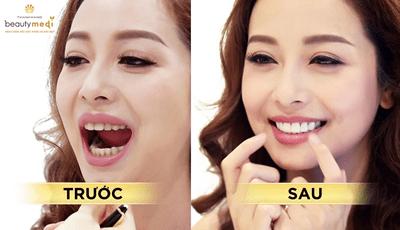 Phát hiện địa chỉ nâng tầm nhan sắc của Hoa hậu Jennifer Phạm - ảnh 1