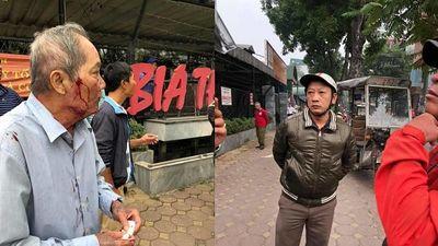Vụ cụ ông 80 tuổi bị lái xe ôm hành hung ở Hà Nội: Có dấu hiệu tội Cố ý gây thương tích - ảnh 1