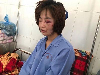 Truy nã 2 đối tượng hành hung nữ phụ xe buýt ở Hà Nội ngày 20/10 - ảnh 1