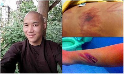 Công an thông tin vụ thầy tu đánh bé trai 11 tuổi dã man ở Bình Thuận - ảnh 1