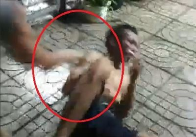 Người đàn ông bị đánh đến nhập viện vì nghi hiếp dâm bé gái tự kỷ - ảnh 1