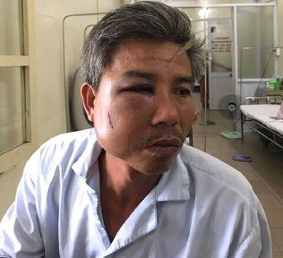 Vụ nhân viên trung tâm Cây xanh Huế bị đánh gãy xương hàm: Công an vào cuộc điều tra - ảnh 1