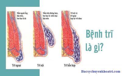 Cách chữa bệnh trĩ triệt để không cần phẫu thuật  - ảnh 1