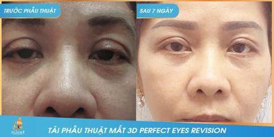 """Công nghệ tái phẫu thuật mắt """"3D Perfect Eyes Revision""""  - ảnh 1"""
