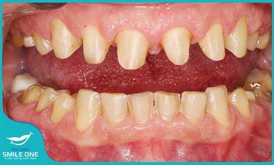 Nói không với mài răng bằng công nghệ Dán sứ Veneer Variolink ES hoàn toàn mới - ảnh 1